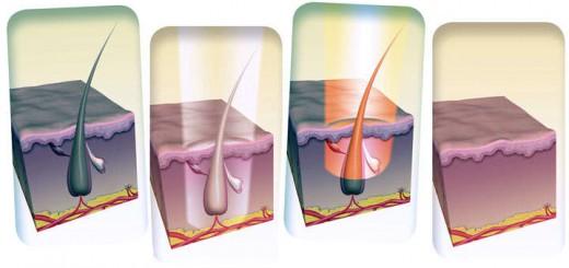 depilacion perianal