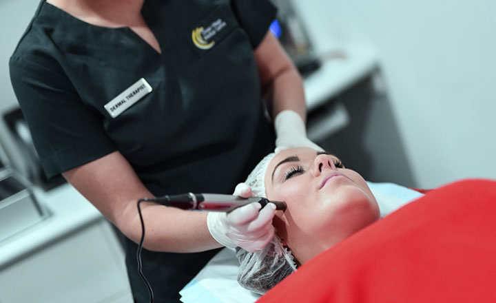 Cómo usar el Dermapen en tratamiento