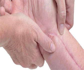 Cómo usar las láminas dermatix y los parches de silicona para cicatrices