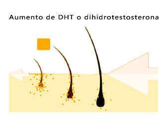 dht o dihidrotestosterona y alopecia