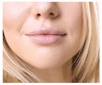 diferencias balsamo labial y remedio casero