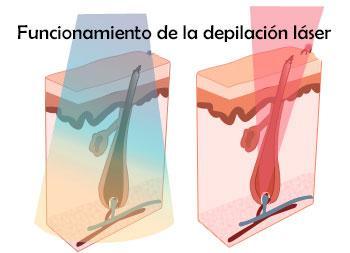 Usar diodo o alejandrita para depilación laser