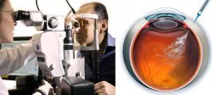 edema macular tratamiento