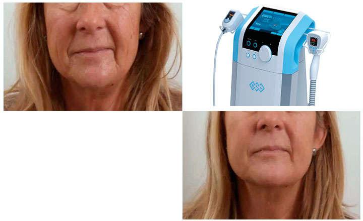 Resultados de exilis facial después del tratamiento de radiofrecuencia