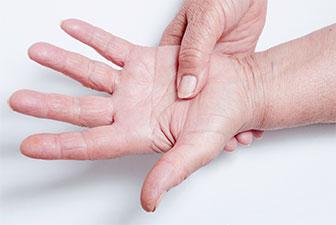 fibromialgia remedios