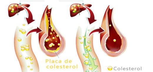 fitoesteroles para bajar el colesterol