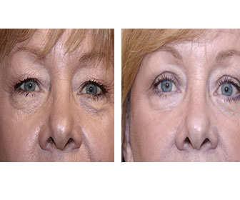 tratamiento con fosfatidilcolina para bolsas en los ojos antes y después