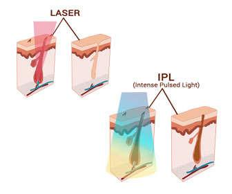 Fotodepilación vs láser