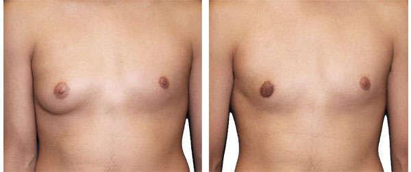ginecomastia bilateral en niños o puberal