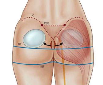 gluteoplastica con implantes
