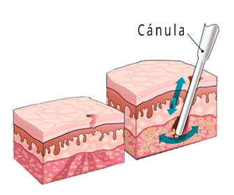 hidrolipoclasia aspirativa y ultrasónica asistida, diferencias