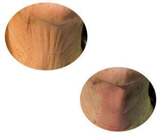 hilos tensores para el cuello antes y después