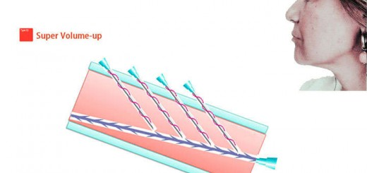 hilos tensores espiculados