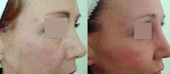 hilos tensores facial resultados