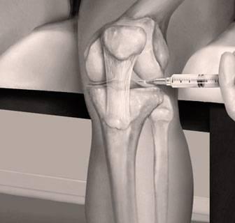 Infiltración de ácido hialurónico en rodilla