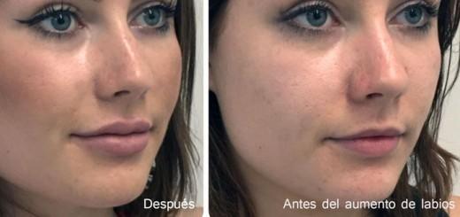inyecciones aumento labios