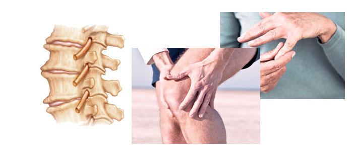 Jengibre como remedio natural para la artrosis y artritis