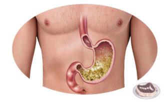 acido o jugo gastrico donde se produce