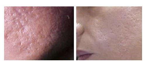 láser para eliminar cicatrices de acné