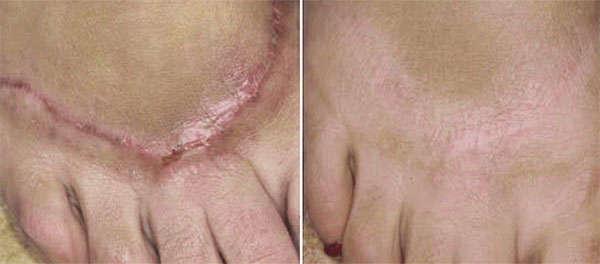 Láser para cicatrices quirúrgicas