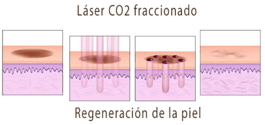 laser CO2 fraccionado para cicatrices