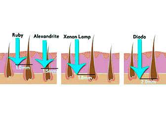 Diferencias entre el láser diodo soprano y los otros láseres de depilación
