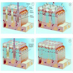 Funcionamiento del láser fraxel para eliminar estrías blancas