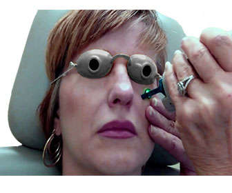 tratamiento laser n yag ojeras