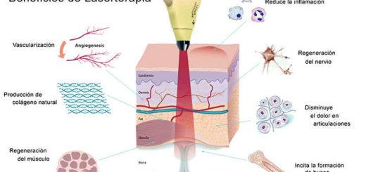Usos y beneficios de laserterapia