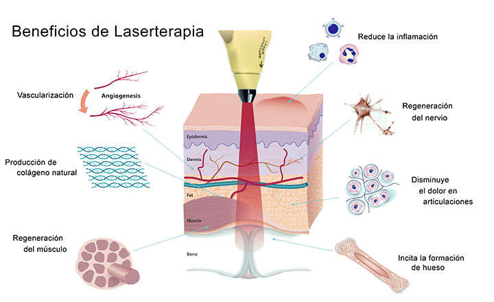 Usos y beneficios de laserterapia