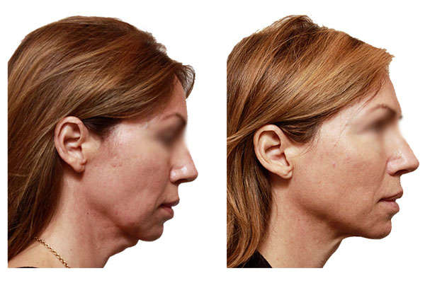 Resultados del lifting de cuello antes y después