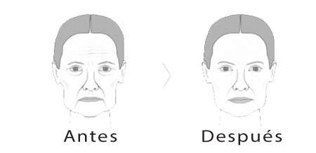 Ventajas e inconvenientes del lifting facial líquido