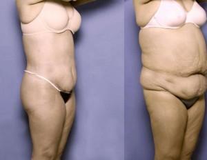 lipectomia abdominal