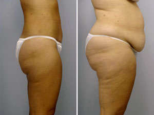 lipectomia con liposuccion