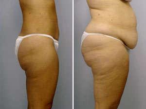 lipectomia con liposuccion