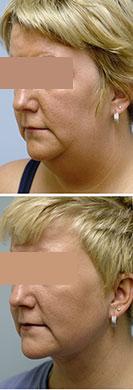 liposuccion de cuello madrid antes y despues