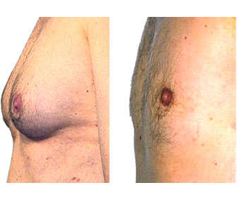 liposuccion de mamas y eliminación de grasa de los senos