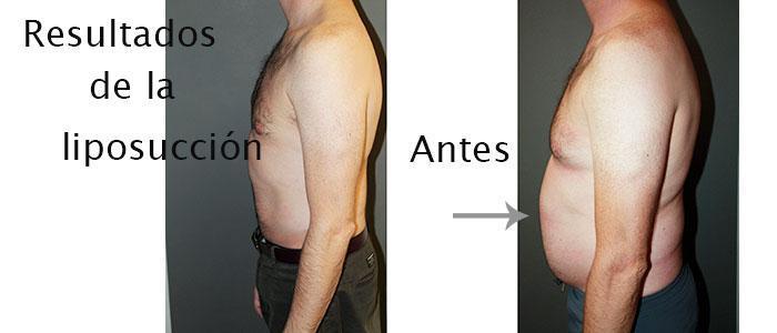 Resultados de la liposucción en hombres