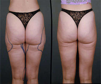 liposuccion piernas enteras y gluteos
