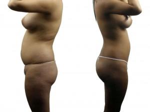 liposuccion sin cirugia