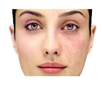 Manchas en la piel antes y después del tratamiento con tretinoína