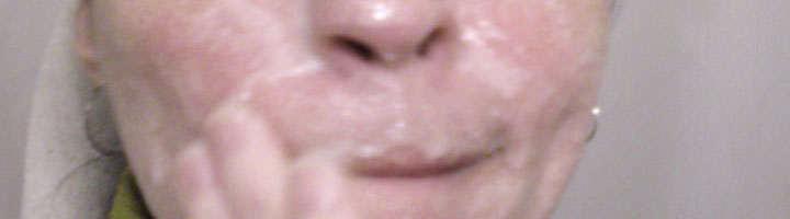 Mascarilla de acido acetilsalicilico y aspirina