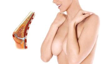 mastopexia con implantes o prótesis de aumento de pecho