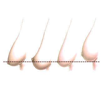 Precio de mastopexia con prótesis y sin prótesis en Quirón