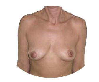 Precio de la mastopexia sin prótesis ¿Cuánto cuesta levantar los senos?
