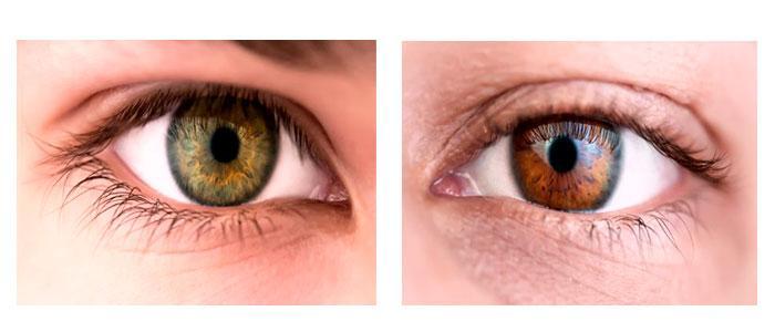 Melanina en los ojos