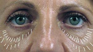 Eliminar bolsas en los ojos sin cirugía【Cremas y