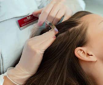 mesoterapia con homeopatia para el cabello