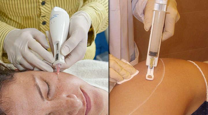mesoterapia infiltrada corporal vs facial