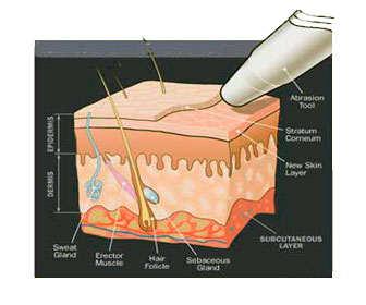 Resultados de la microdermoabrasión antes y después para estrías, arrugas y cicatrices